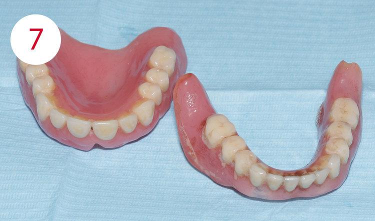 Zahnprothese in jungen jahren